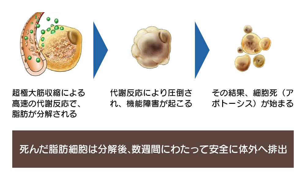 超極大筋収縮による 高速の代謝反応で、 脂肪が分解される。代謝反応により圧倒され、機能障害が起こる。その結果、細胞死(アポトーシス)が始まる。死んだ脂肪細胞は分解後、数週間にわたって安全に体外へ排出。